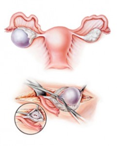 left ovarian cyst causes